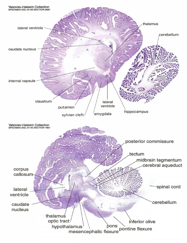 Inferior Colliculus Cross Section - More information - Djekova